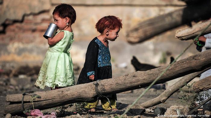 سوء تغذیه در جهان فائو